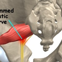 Assessing the Right Cure for Sciatica