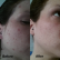 Best Treatment For Adult Acne