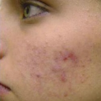 Best Treatment For Hyperpigmentation  -  Making The Right Choice