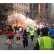 Boston Marathon Bombings And Health Issues