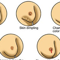 Breast Cancer Numbers World Wide Are Increasing, Cervical Cancers Slow