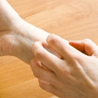 Choosing A Nice Psoriasis Treatment For Your Wellbeing
