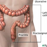 Colitis Truth Facts AND Cure