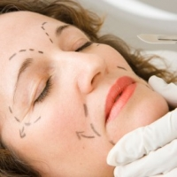 Deep Face Wrinkles Treatment – Treatment And Preventing Options for Deep Face Wrinkles
