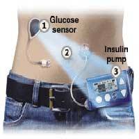 Diabetes, the Past And the Future
