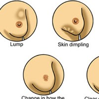 Does Your Breast Size Have Anything to Do With Your Breast Cancer Risk?