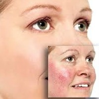 Effective Home Remedies For Rosacea Reviewed