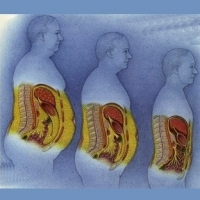 Five Things You Must Know About Deep Belly Fat
