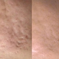 Fraxel Before After Acne