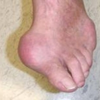 Gout Treatments And Prevention