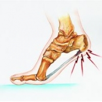 Heel Pain While Running  -  A Solid Tip To Alleviate The Pain