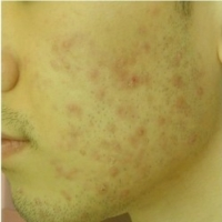 How Do You Get Rid Of Spot Scars On The Face?  -  Top Tips For An Even Skin Tone