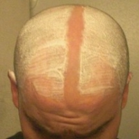 How to Decide If You Should Shave Your Head