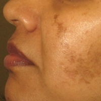 How To Get Rid Of Dark Marks On The Face  -  A Natural Approach