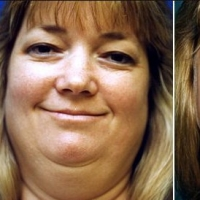 How to Lose Your Double Chin With Infrared Saunas