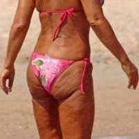 How to Remove Cellulite From Buttocks