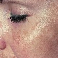 How To Remove Pigmentation Marks From The Face  -  3 Tips To Improve Your Complexion