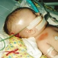 Living With Shaken Baby Syndrome: How One Second Can Change Lives for Parents And Children Forever