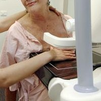 Mammograms May Raise Breast Cancer Risk In Certain Age Groups