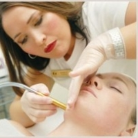 Microdermabrasion For Removing Stretch Marks