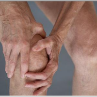 People With Arthritis Are Not Following Federal Guidelines for Activity Levels, Study Says