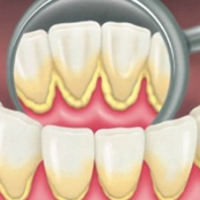 Plaque on Teeth