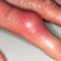 Symptom Of Gout – How To Keep It At Bay