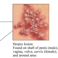 Symptoms Of Herpes And the Causes Of Herpes