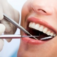Things to Consider When Looking for A Dentist