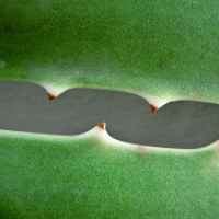 Using Aloe Vera for Acne Scars  -  7 Simple Steps to Use This Magical Substance