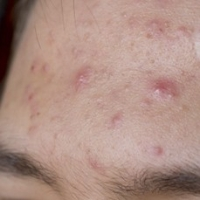 What Are the Root Causes Of Acne?