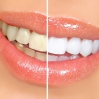 Whiten Your Teeth Naturally at A Very Low Cost: Using Hydrogen Peroxide
