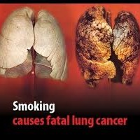 Why Should I Quit Smoking- Cause It Kills Stupid