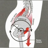 Why You Should NOT Stretch the Hamstrings If You Have Lower Back Pain